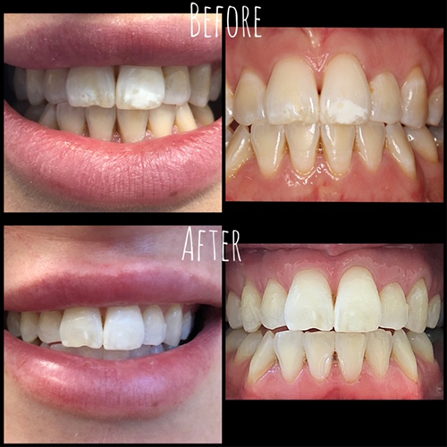 Professional Laser Teeth Whitening Pearl Smile Dental Group